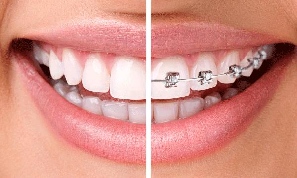 ortodoncia_invisalign