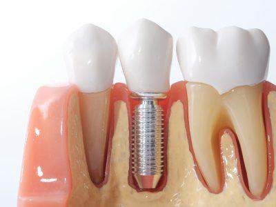 implantologia_2